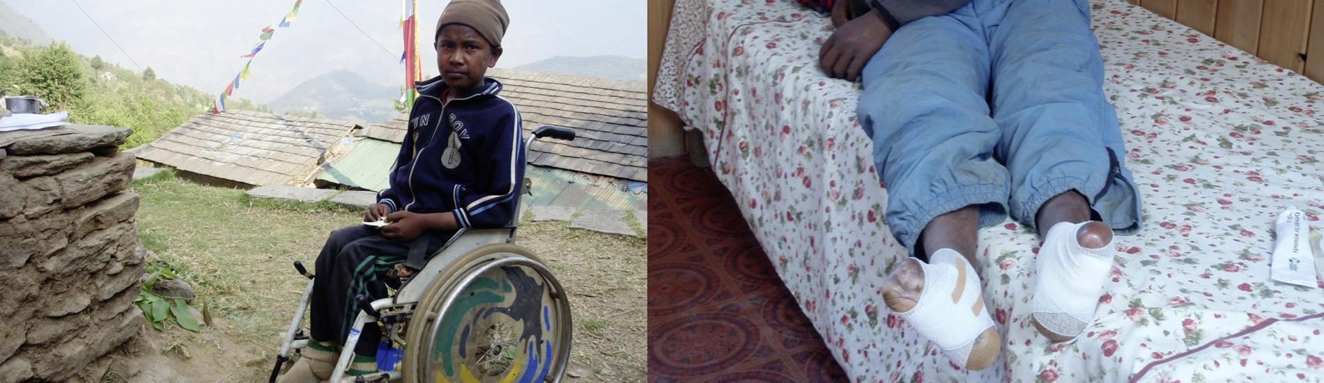 Behinderter Kinder